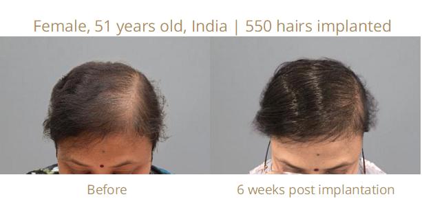 Erfahrungen frau haartransplantation haartransplantation erfahrungen